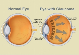 Edibles_List_Magazine_Featured_Article_Cannabis_and_Glaucoma